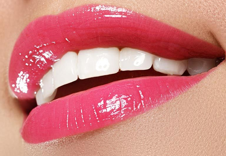 Blanchiment Des Dents / Teeth Whitening