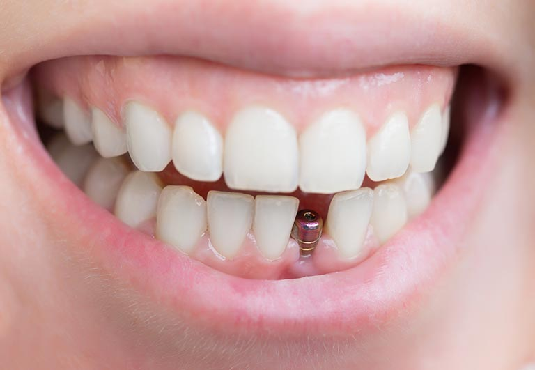 Implant Dent / Tooth Implant